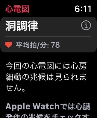 Apple  Watchで健康管理